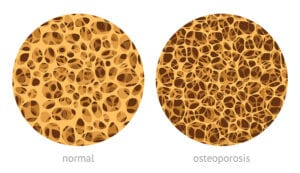 Osteoporosis Physicaltherapy